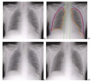 Carestream Bone Suppression Software