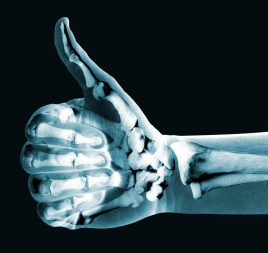 Thumb Up X-ray photo