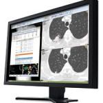 Carestream-clinical-collaboration-platform