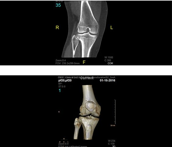 2D and 3D orthopaedic renderings generated by the CBCT scanner