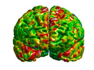 Image of the frontal cortex