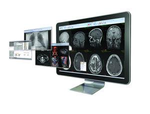 Informes de radiología