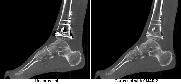 CT scan of weight bearing foot.