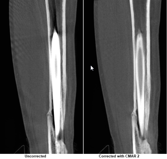 comparison of radius fracture with and without CMAR2 correction