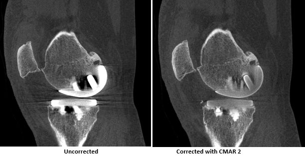 comparison of 2 images of sagittal plane through knee, with and without CMAR 2 correction