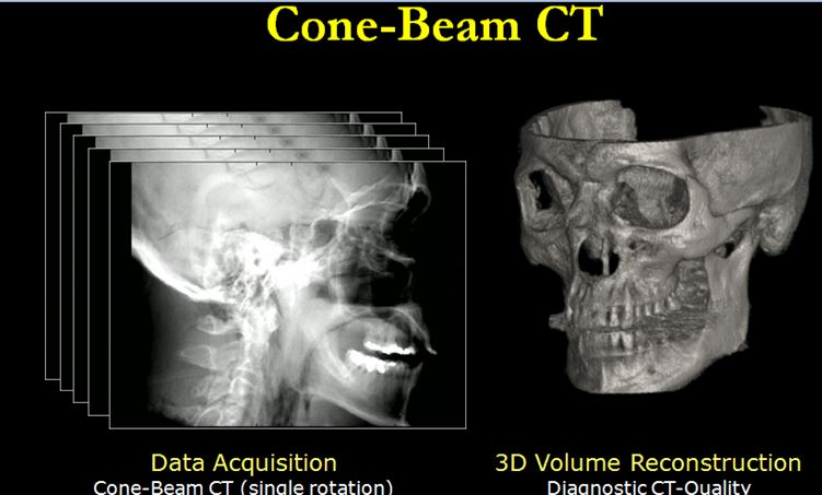 Image of data acquisition of skull using cone beam CT