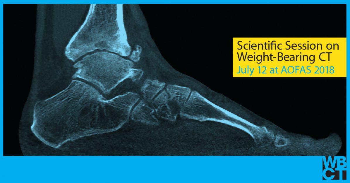 radiograph of foot