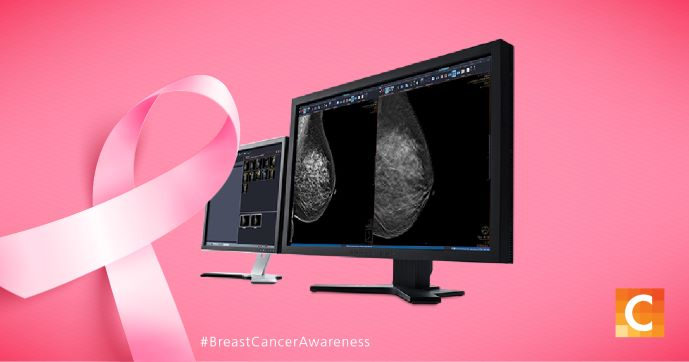 PACS workstation with a breast image on it