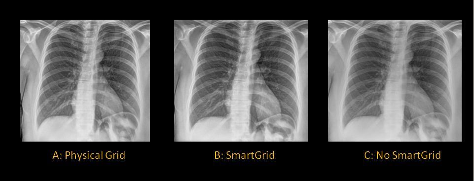 series of 3 chest x-ray images