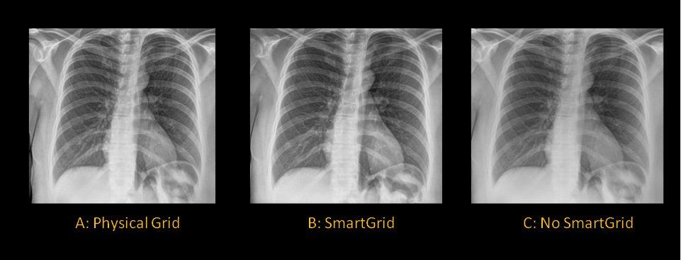 serie de 3 radiografías de pecho