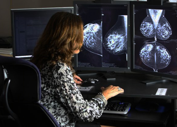 Image of a radiologist reviewing a mammograph.