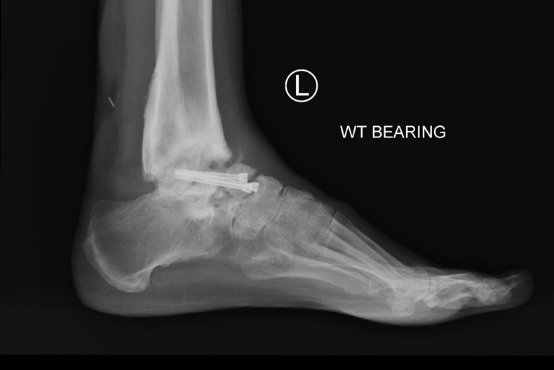 3D CT image of weight-bearing foot for infected ORIF talus