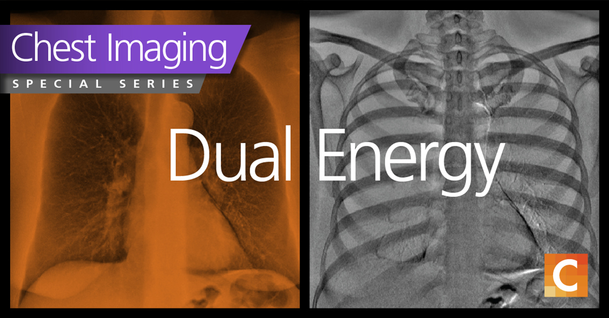 Duel energy chest image with Carestream logo in the bottom right corner.