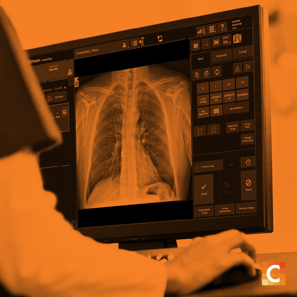 Photo of an X-ray scan with orange overlay and Carestream logo in the bottom right corner.