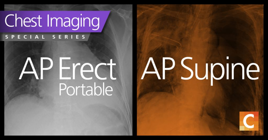 Duel photo. Left photo AP erect portable in black and white. Right photo AP supine with orange overlay.