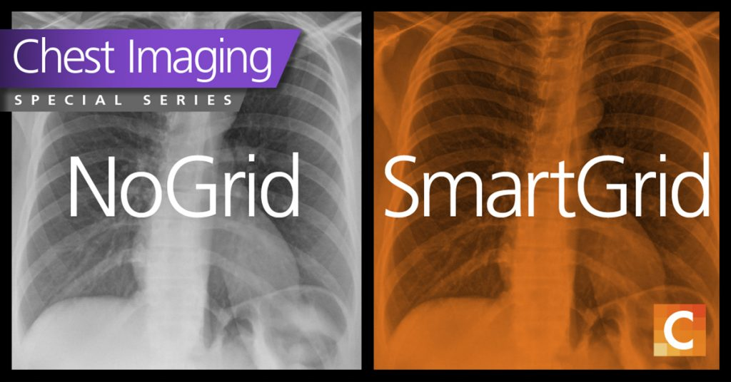 Duel photo. Left photo shows a chest X-ray in black and white without the use of Smart Grid. The right photo shows smart grid image of the chest X-ray with orange overlay. Carestream logo in the bottom right corner.