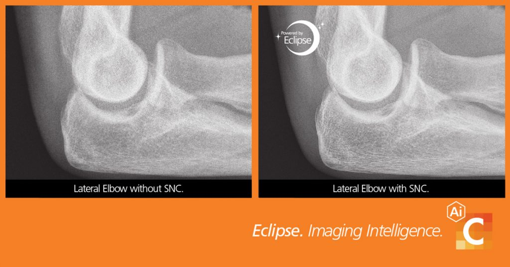 Comparison of medical images of elbow taken with smart noise cancellation and without it.