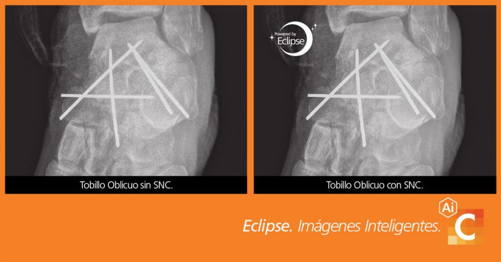 Comparación de imágenes médicas de codo tomadas con cancelación inteligente de ruido y sin ella.