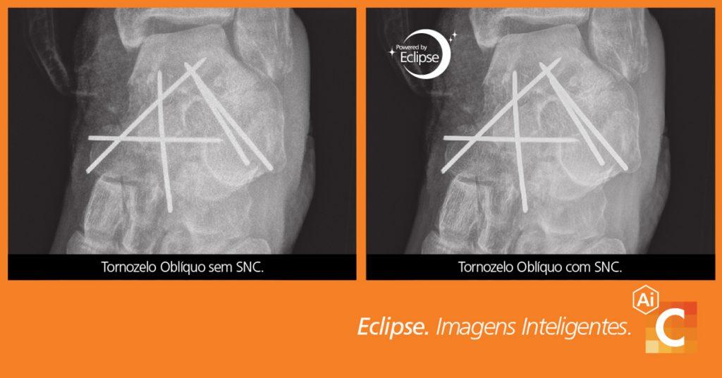 Comparação de imagens médicas de cotovelo tiradas com cancelamento de ruído inteligente e sem ele.