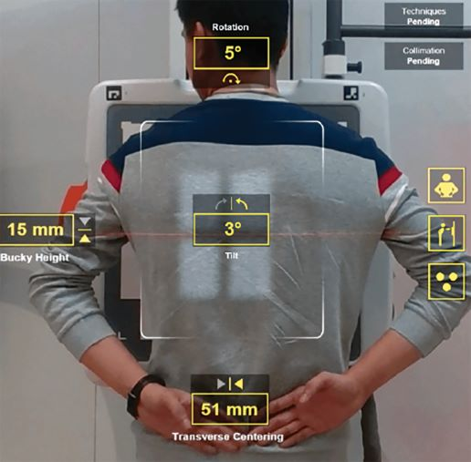 image of patient that shows automated positioning features powered by AI.