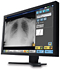 Radiography Software
