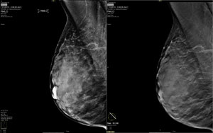Digital 