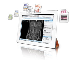 University of Iowa Health Care Purchases Carestream's Enterprise Viewer, Lesion Management and Mammography Modules
